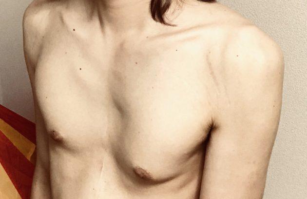 マルファン症候群による漏斗胸により胸が凹んでいる